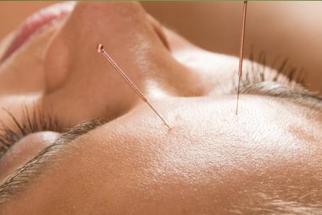 Augenakupunktur nach Prof. Boel