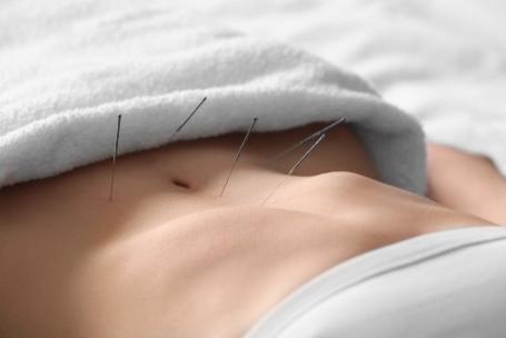 Moderne Akupunktur nach Boel