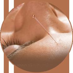 Akupunktur gegen Augenleiden